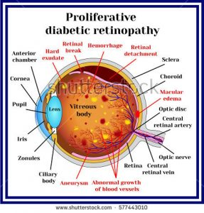 Proliferative diabetic retinopathy diagram