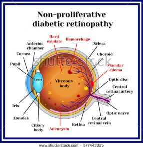 Non-proliferative diabetic retinopathy