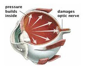 Damage Optic Nerve - glaucoma screening.